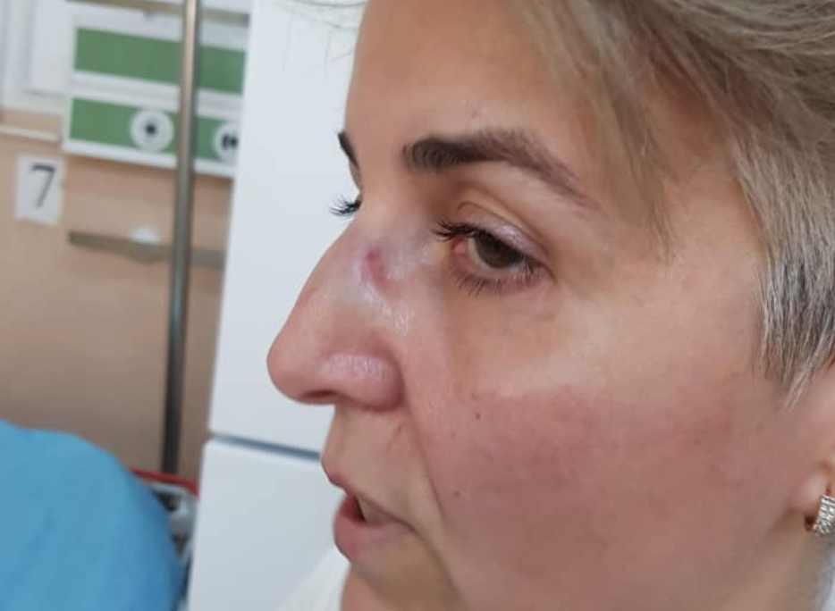 Scandal la ATI: O asistentă medicală susține că o colegă a snopit-o în bătaie pentru că ar fi întreținut relații intime cu anestezistul / Cum reacționează conducerea spitalului (DECLARAȚII EXCLUSIVE)